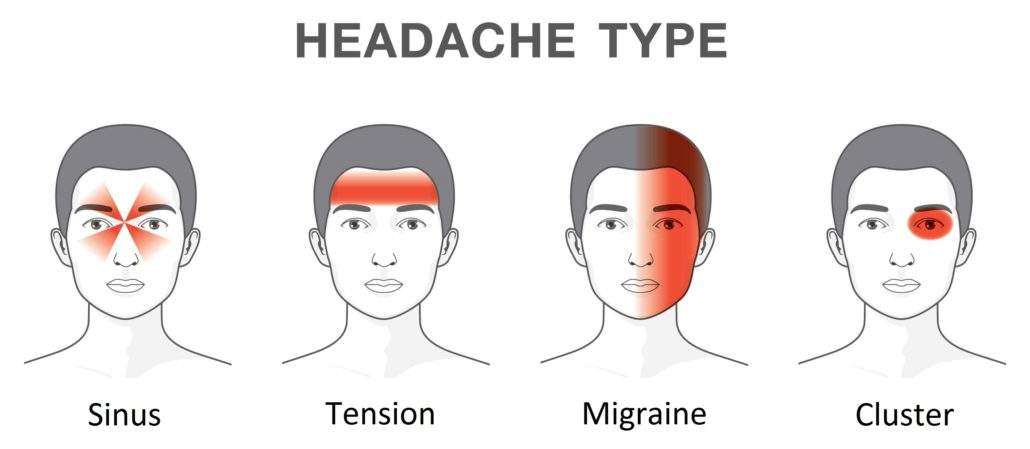 4 Common Types of Headaches - Symptoms & Duration - Dr